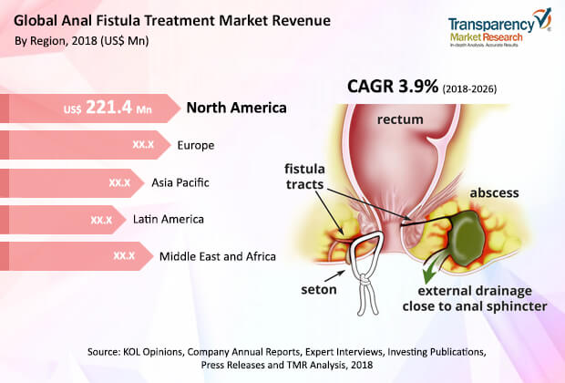 anal-fistula-treatment-market.jpg