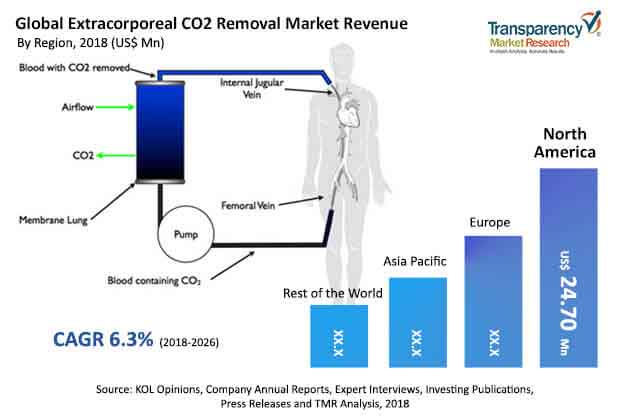 extracorporeal-co2-removal-market.jpg