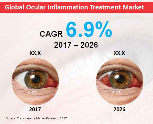 global ocular inflammation treatment market