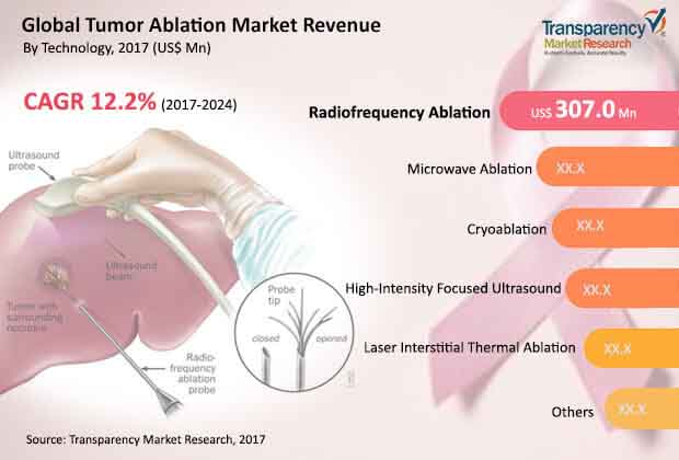 global tumor ablation market