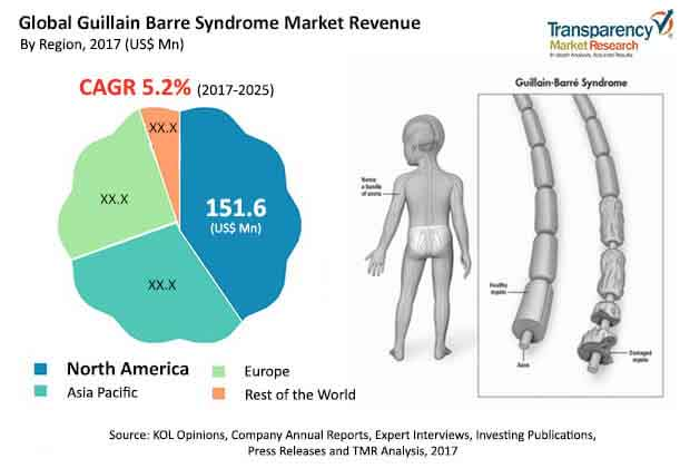 guillain-barre-syndrome-market.jpg