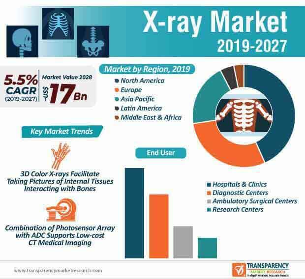 x ray market infographic